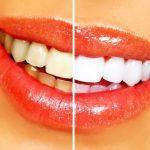 自宅で歯を白く!【オススメのホームホワイトニング用品】人気&売れ筋ランキング・ベスト5