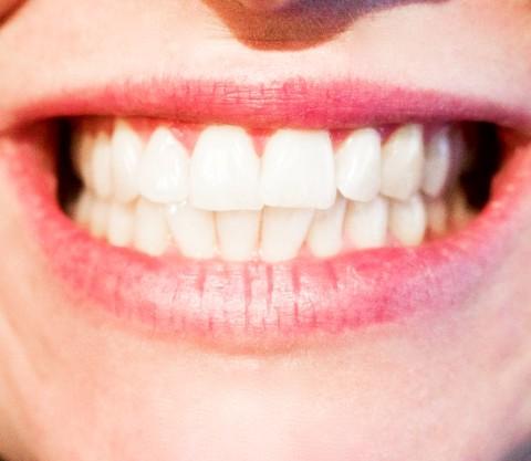 オススメの電動歯ブラシ